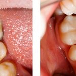 Fillings Dental Treatment Doral Fl