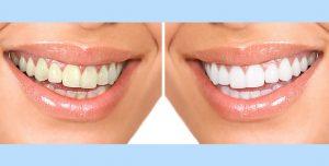 teeth whitening doral fl