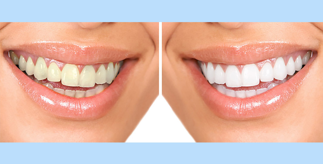 teeth whitening doral fl