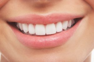 healthy perfect smile