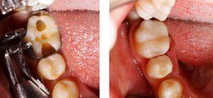 Fillings Dental Treatment Doral Fl