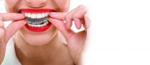 invisible braces orhodontics