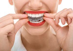 invisible braces orthodontics0