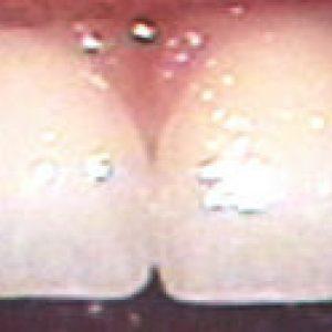 shaped enamel