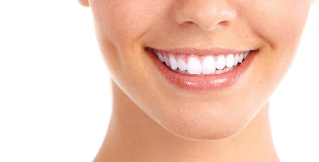 smile makeover doral fl